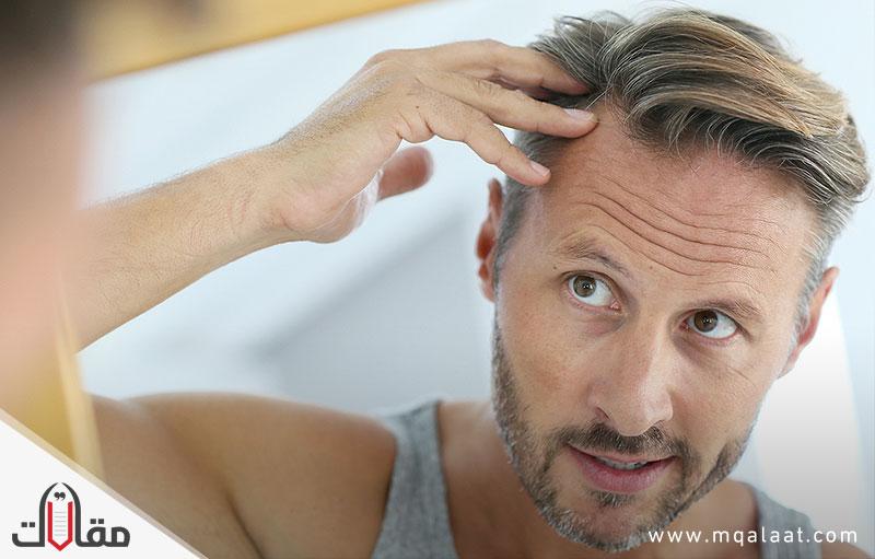 أهم أسباب تساقط الشعر بالتفصيل