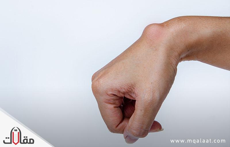 علاج الكيس الزلالي بدون جراحة