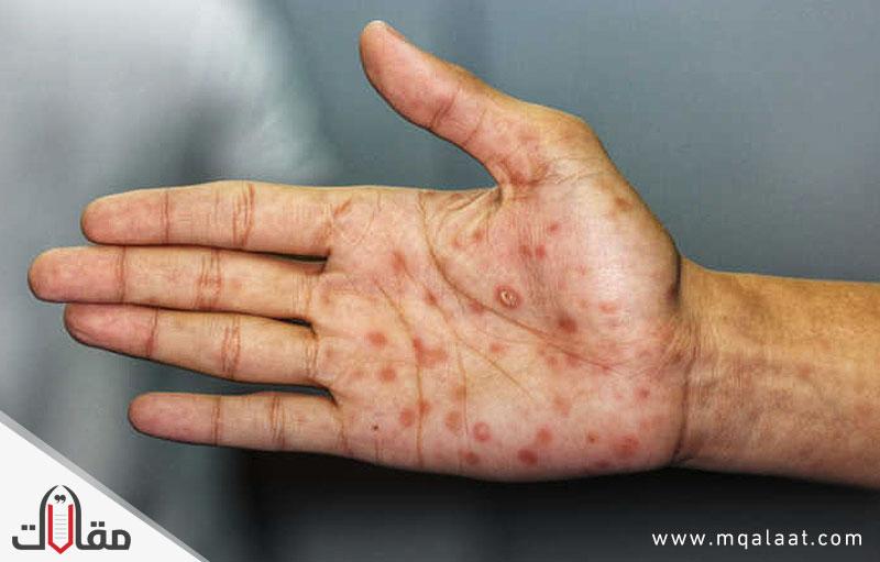ما هو مرض الزهري