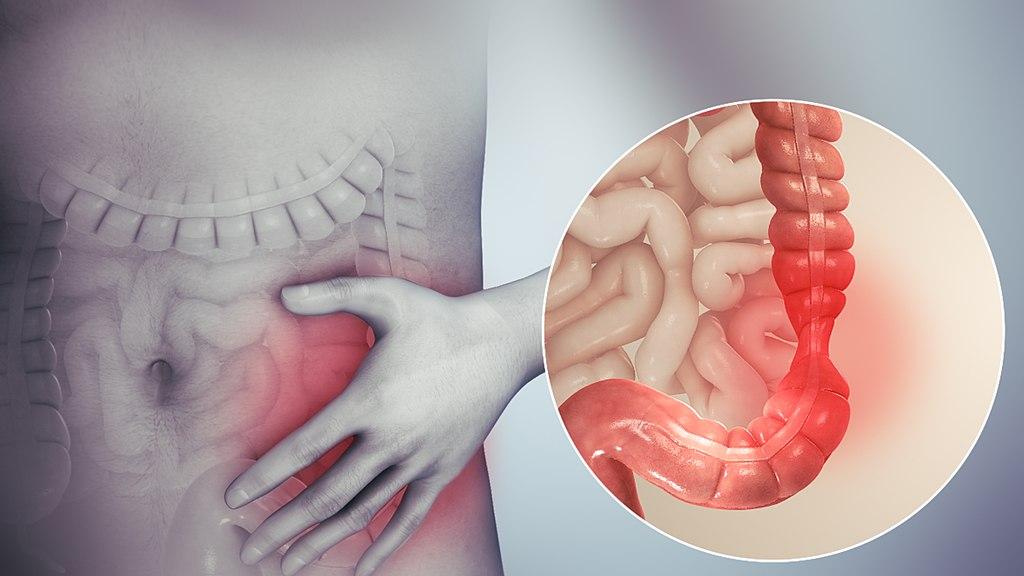 علاج التهاب القولون العصبي