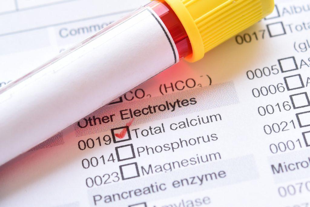 نسبة الكالسيوم الطبيعية في الدم