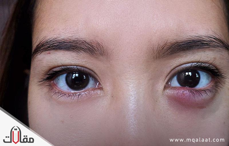 علاج الكيس الدهني في العين بدون جراحة