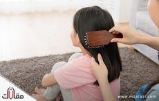 سقوط الشعر عند الاطفال