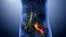 علاج داء العصب الوركي