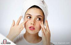 اسباب و علاج هالات العينين
