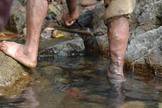اسباب مرض دوالي الساق