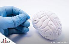 اعراض ورم المخ