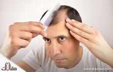 سقوط الشعر وعلاجه